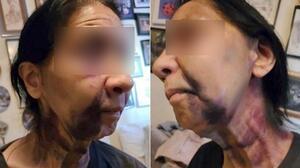 Golpean brutalmente a una anciana de origen mexicano que pensaron era asiática, denuncia su hijo
